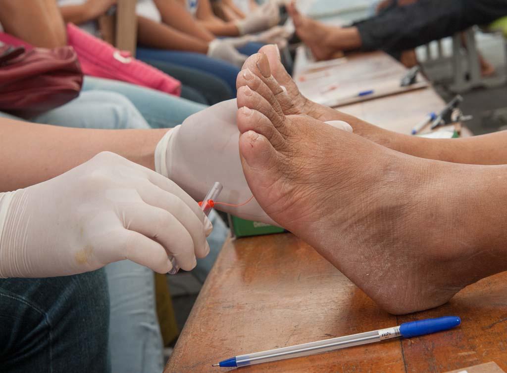 Exame do pé Diabético_8